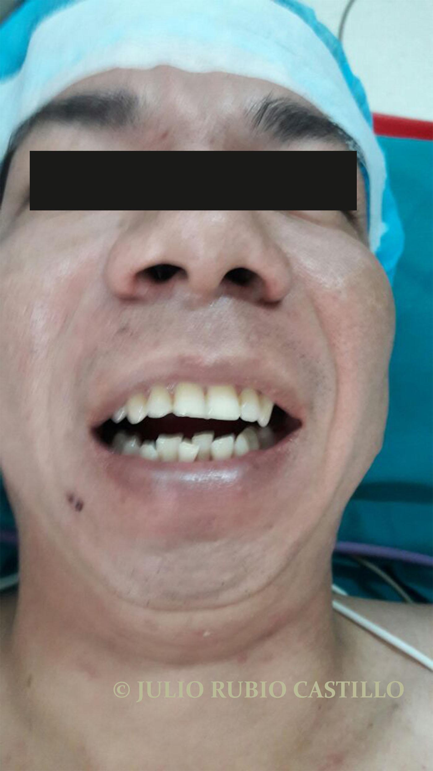 1 Limitacion de apertura bucal