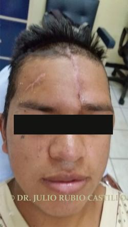 11 Pos quirurgica