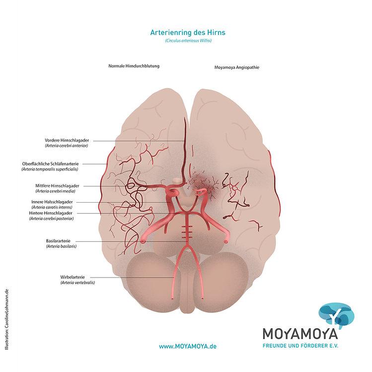Arterienring des HirnsRGB(lat)blau.jpg