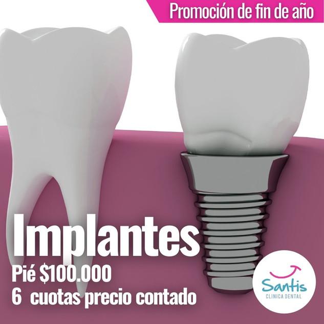 Implantes.jpg