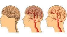 CSDP Gold가 뇌에 미치는 효과