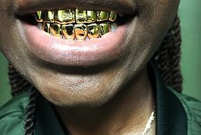 Gold Money Grillz