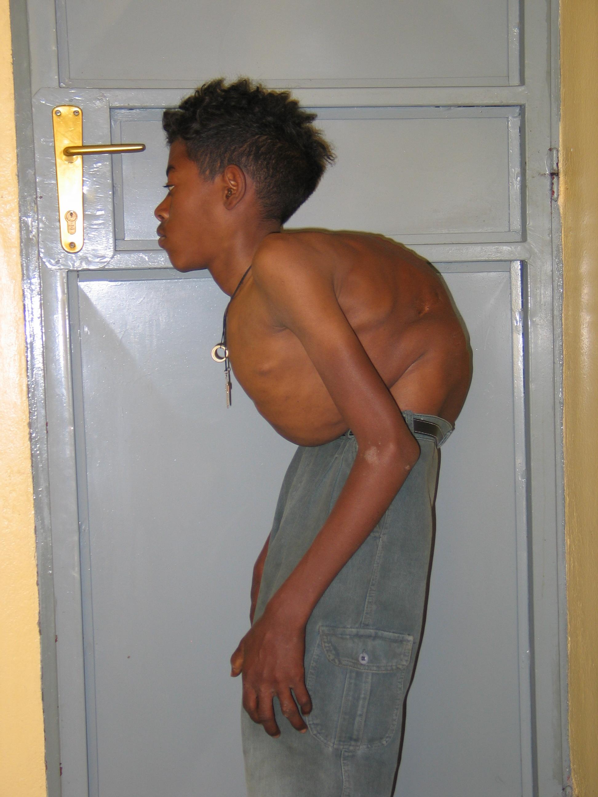 Tesfaye's back before operation