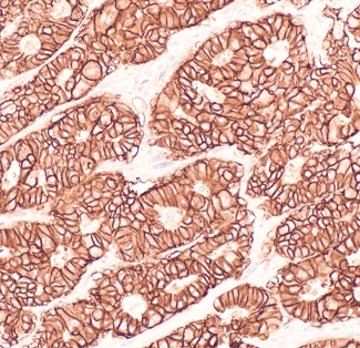 Antigen Retrieval: The Importance of Pretreatments