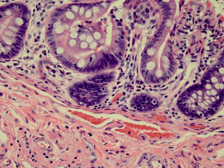 Troubleshooting Histology: Double Barrel Style -H&E and Special Stains