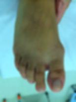 Tratamento cirurgico joanete