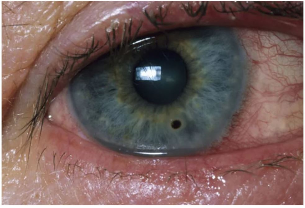 Object in Eye