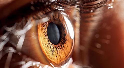 clear_eyes.JPG