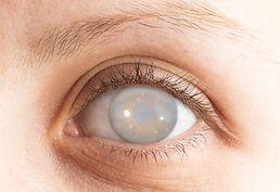 cataract_eyes.JPG