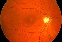 glaucoma_what_happens.JPG