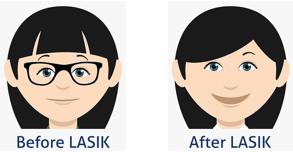 Refractive Eye Surgery