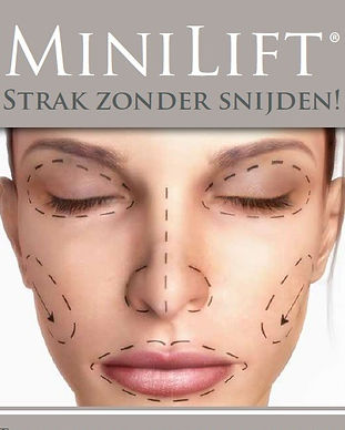 Minilift%20voorkant%20folder_edited.jpg