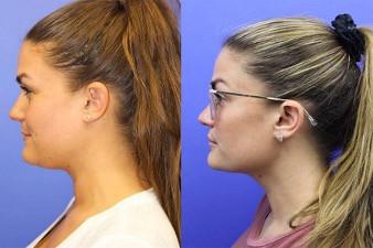Double chin treatment Oakville Burlington Toronto Hamilton