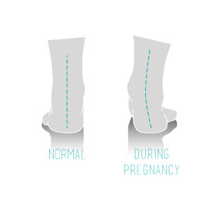 Arches can fall during pregnancy image - Souls Insoles