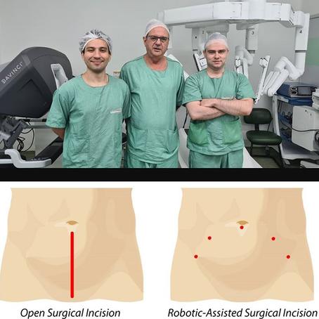 Cirurgia Robótica: cortes menores e maior precisão