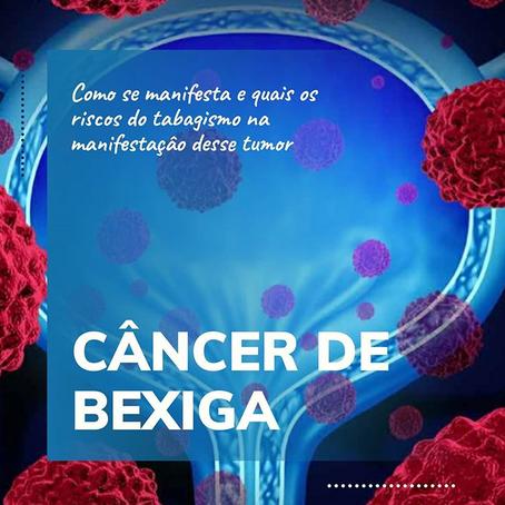 Saiba mais sobre o Câncer de Bexiga