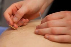 Myofascial Dry Needling