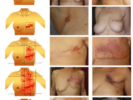 Powierzchniowy (w tym rozległy) nowotwór piersi, czerniak złośliwy - jak leczyć?