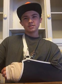 Just 5 weeks ago he broke his wrist.
