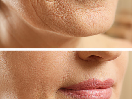 Lip rejuvenation without unwanted volume - how?