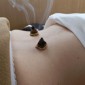 La moxibustion en médecine chinoise.