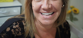 Próteses e Implantes Dentários Em Americana