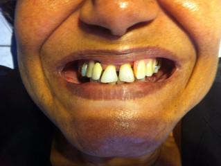 Estetica dentale mostra più che un sorriso.