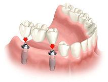 Clínica Prótese Dentária Em Americana