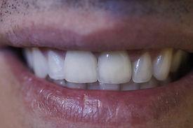 Dentista Prótese e Implantes Americana