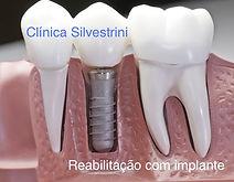 Dentista implante em Americana
