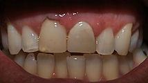 precisa de dentista