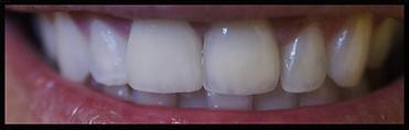 Dentista Prótese Em Americana