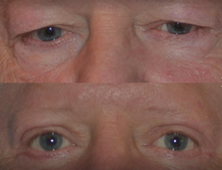 Upper eyelid lift denver