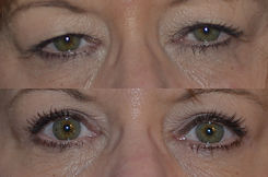 Eyelid Before and after