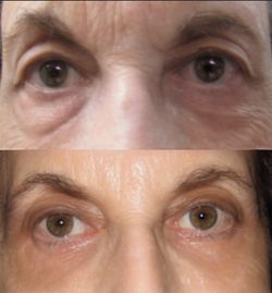 Upper and Lower eyelid lift