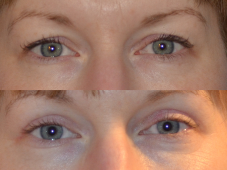 What exactly is Cosmetic Eyelid Surgery: An Eyelid Specialist in Denver Dispels the myths concerning