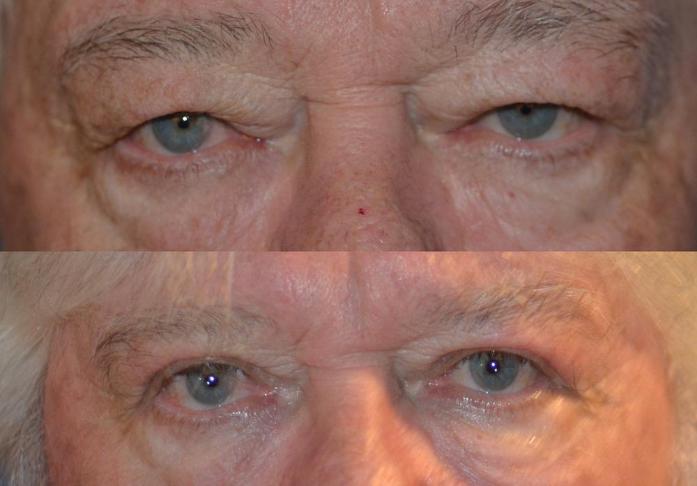 Blepharoplasty of man