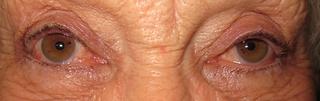 Low eyelid
