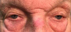 Eyelid Surgery in Denver