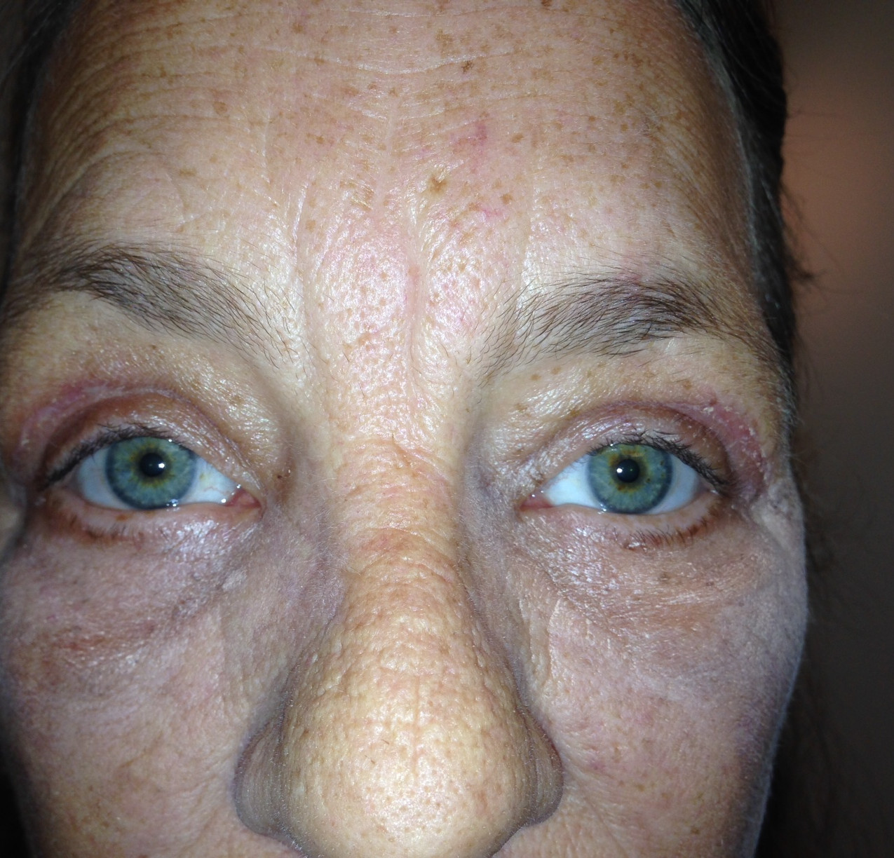 One month after surgery for drooping eyelid in Denver