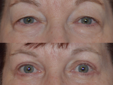 Is now the time to get a blepharoplasty or eyelid lift in Denver?