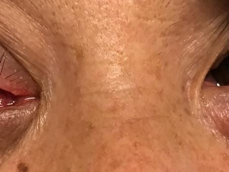 Emergency Eye and Oculoplastic Cases during 2020 Coronavirus Pandemic (COVID-19) in Denver