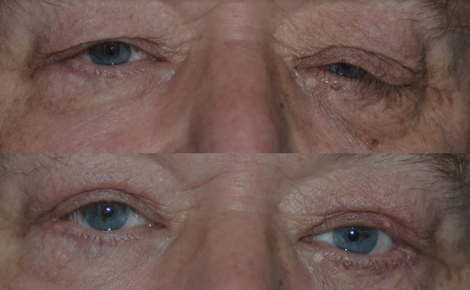 Floppy Eyelid Repair
