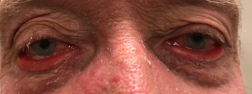 Red Eye Denver