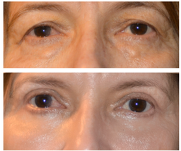 eyelid lift denver
