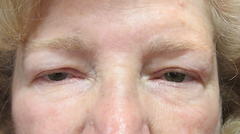 Narrow eyelid before photo