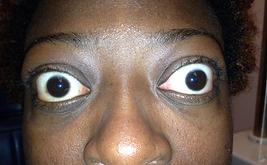 Bulging eyes wide eyed