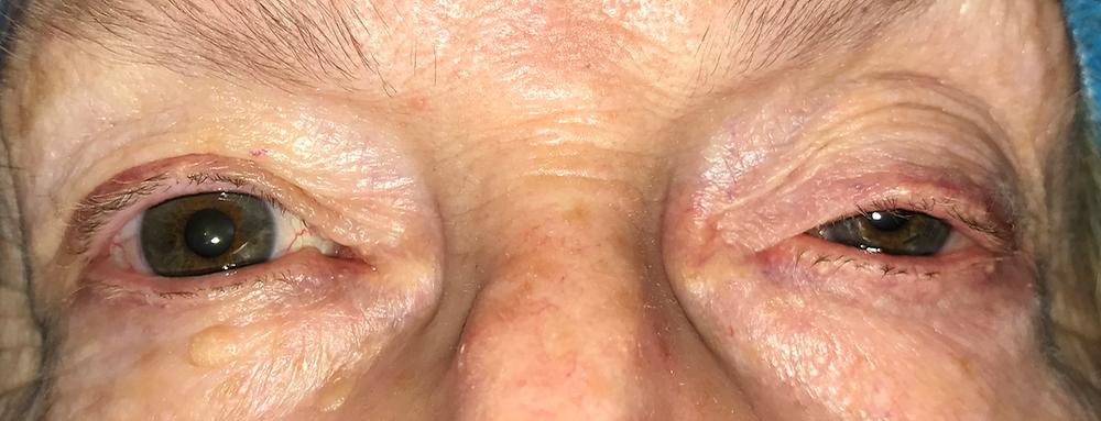 Drooping eyelid denver