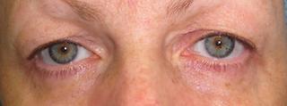 Before blepharoplasty photo