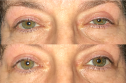 Left upper eyelid lift